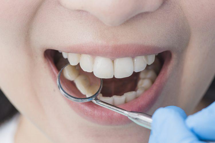 Ваденена зъб