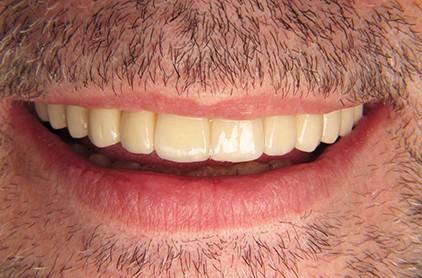 Възстановяване на цяла челюст с импланти - All on 4