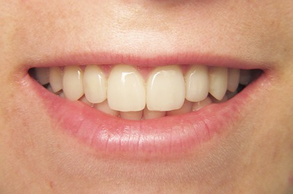 Цялостно лечение при изтрити и абразирани зъби